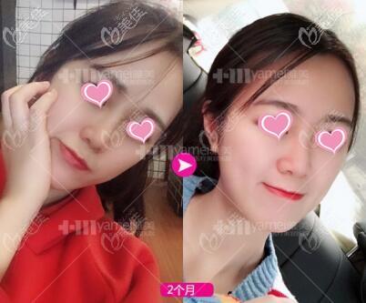 长沙雅美医疗美容医院姚江华术后照片1