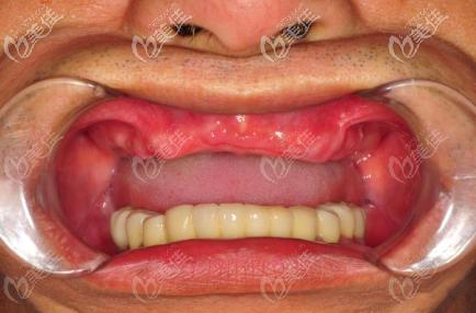 西安林牙立齿口腔门诊部文绍先术前照片1