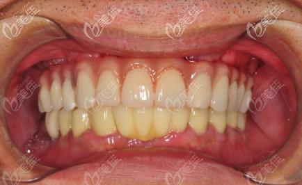 西安林牙立齿口腔门诊部文绍先术后照片1