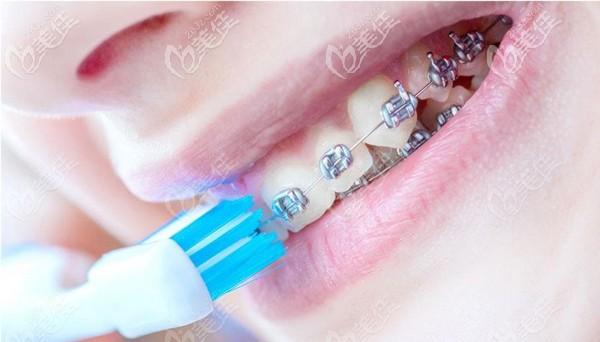 在秦皇岛矫正牙齿大概多少钱你想了解么?可参考蓝天口腔正畸收费哦