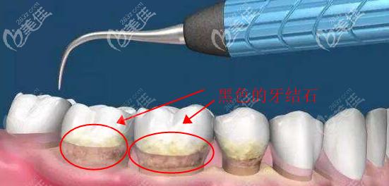 牙龈周围黑色的牙结石的图片
