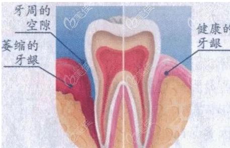 牙龈萎缩示意图