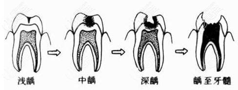 牙龈萎缩导致牙齿龋坏的图片