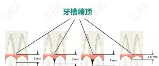 牙龈萎缩3毫米的图片