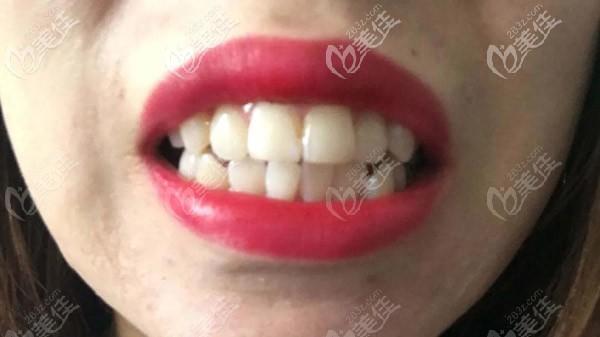 牙齿还算整齐,但嘴巴很突