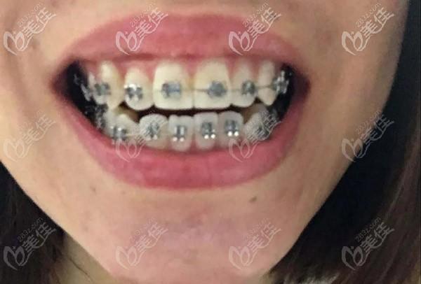 我是先戴的钢牙套才拔的牙哦