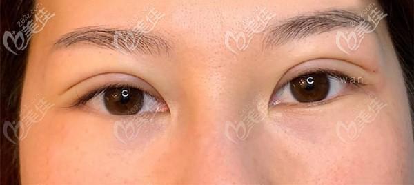 南充艾迪曾少林切开双眼皮术后效果