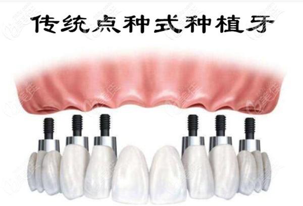 传统点种式全口种植牙