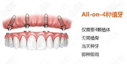 重庆allon4全口种植牙