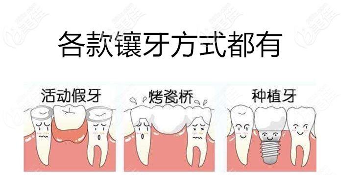 沈阳欢乐口腔各种镶牙方式都有