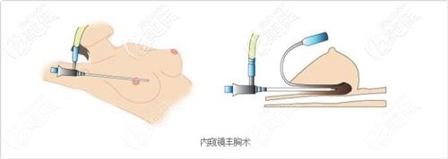 刘主任做假体隆胸的原理