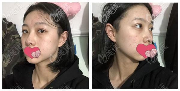 隆鼻第十天拆线,鼻头有淤青