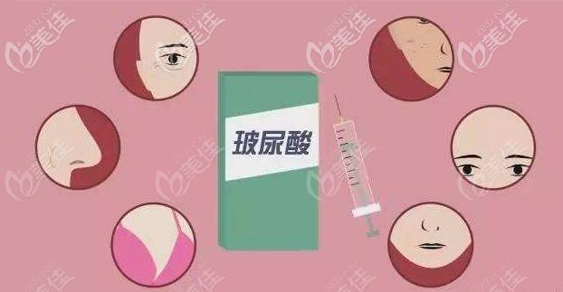 注射玻尿酸的用途