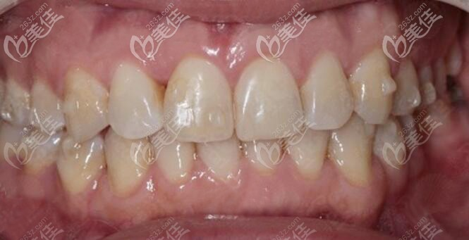 两颗下门牙往里凹在东莞牙易美带上时代天使牙套后,同事们都没人看出来