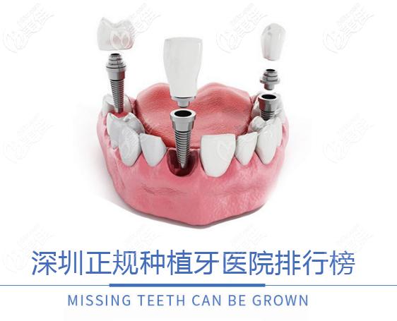 深圳正规种植牙医院排行榜来啦,都是种牙技术靠谱的医院哦