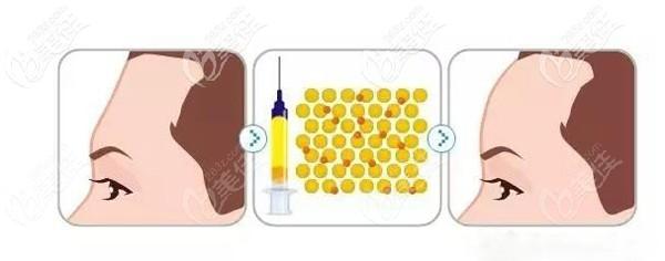 采用自体脂肪填充术后效果