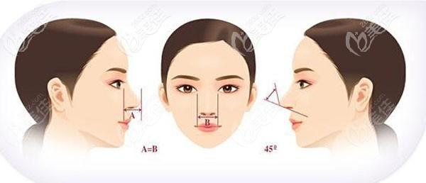孔祥玉医生做硅胶假体隆鼻技术优势