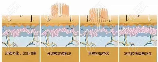 二氧化碳激光的治疗作用