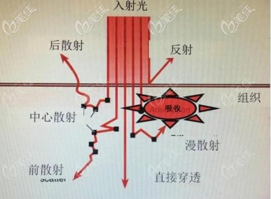 二氧化碳激光的治疗途径