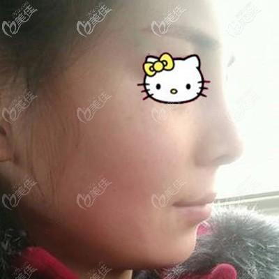 立秀加强型膨体隆鼻术后8天拆线