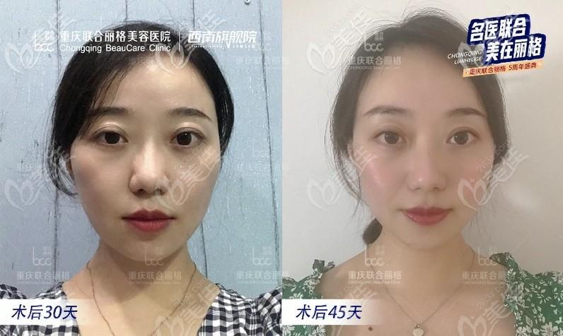 重庆联合丽格美容医院周业松术后照片1