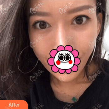 北京童仁医疗美容门诊部欧素娇术后照片1