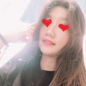 沈阳创美荟医疗美容门诊部张旭焱术后照片1