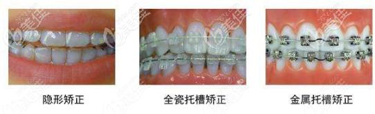 牙齿矫正常用的几种方法