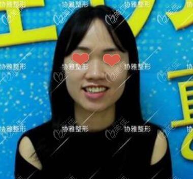 长沙协雅医疗美容门诊部邹笑寒术前照片1