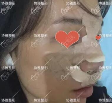 鼻综合术后第1天效果照
