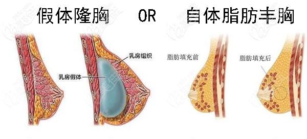 硅胶假体隆胸好还是自体脂肪丰胸好