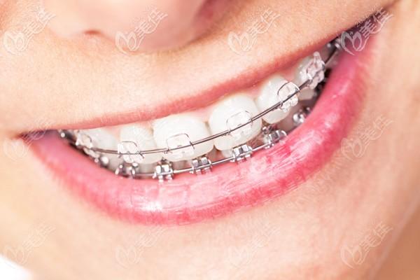 广州中家医医生口腔的牙齿矫正价格