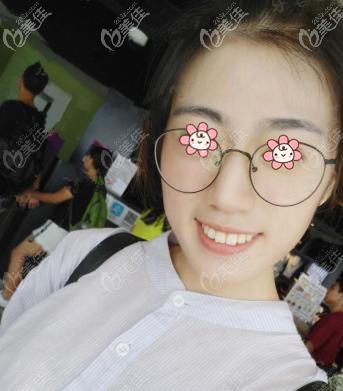 重庆美莱整形美容医院刘利军术前照片1