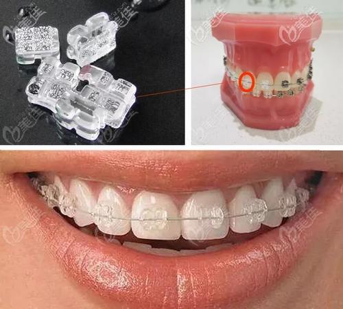 陶瓷托槽牙齿矫正