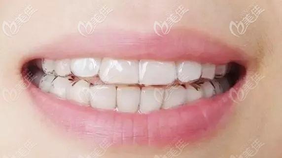 隐形牙套图示