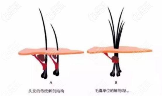 头发毛囊单位的解刨结构图