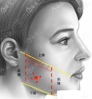 如何判断自己是咬肌肥大而不是下颌角宽大