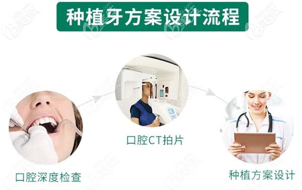 种植牙方案设计流程