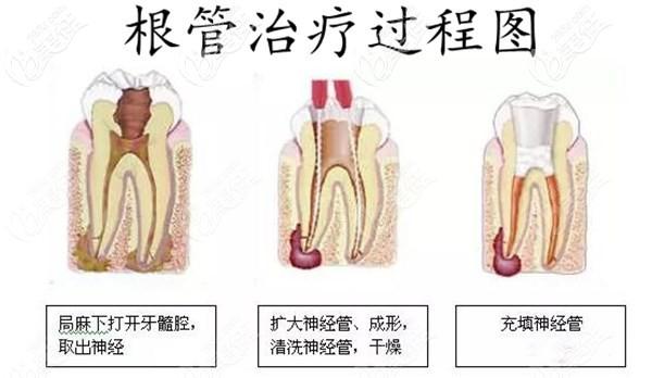 牙齿根管治疗过程图