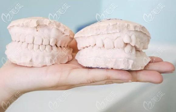 儿童牙齿矫正的牙模前后效果