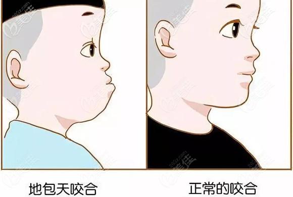 儿童错牙合面型和正常咬合面型对比图