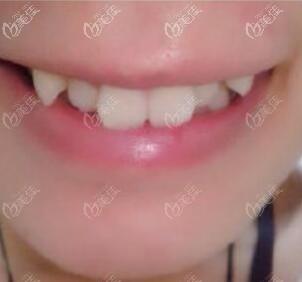 牙齿矫正术前照