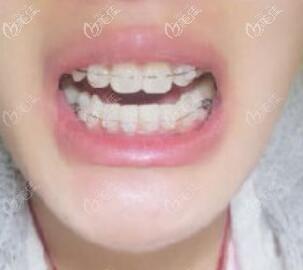 牙齿矫正一年左右的矫正情况照