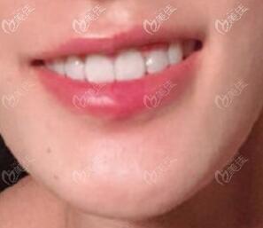 牙齿矫正摘掉牙套后的效果照