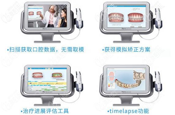牙博士做隐适美iTreo口扫智能矫牙