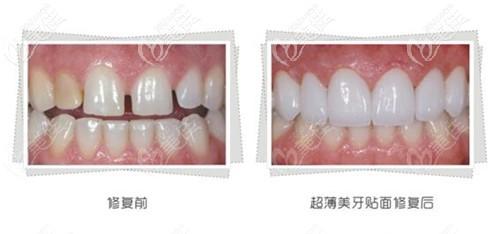 门牙牙缝大做牙贴面效果