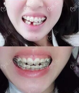 做牙齿矫正术前术后对比照