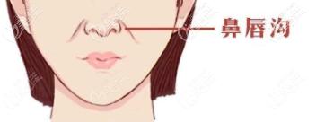 鼻唇沟示意图