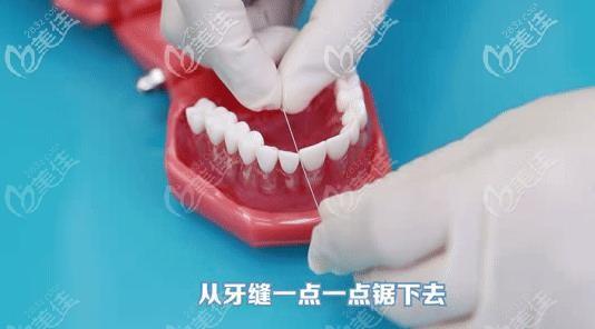 牙线使用第二步