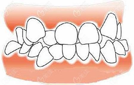 牙齿参差不齐的程度
